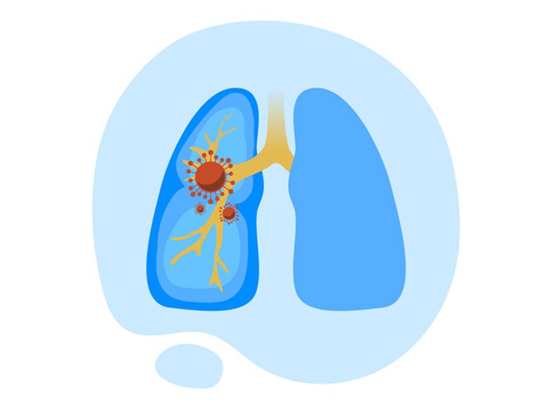 Сьогодні, 12 листопада, відзначається Всесвітній день боротьби з пневмонією.